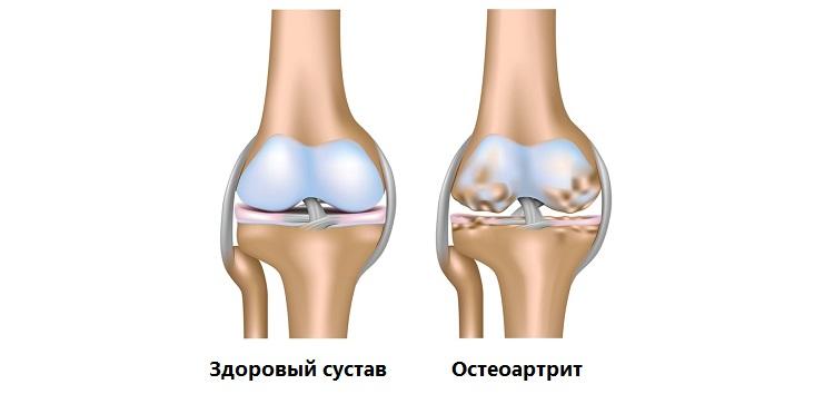 Лечение остеоартрита