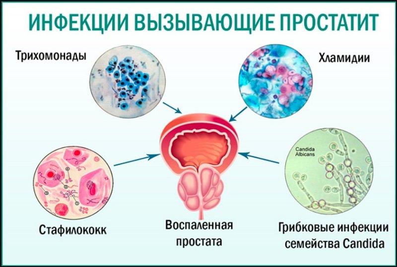 Простатит и инфекционный простатит