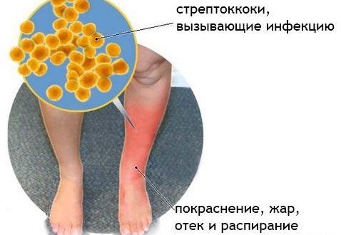 Рожа на ноге, лечение в домашних условиях