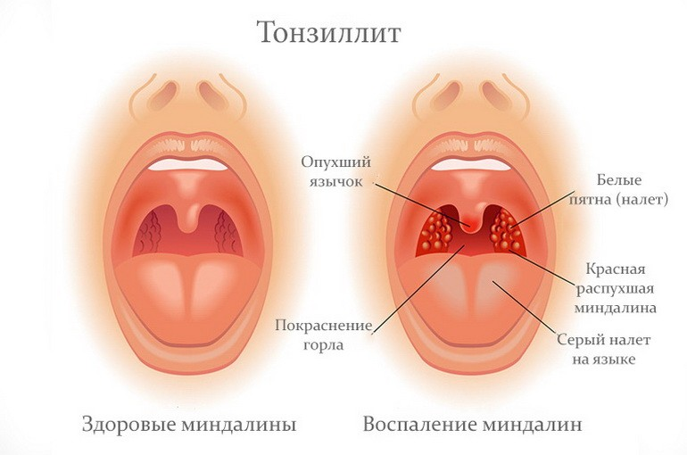 Лечения тонзиллита в домашних условиях