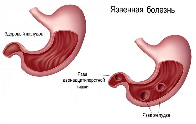 От чего появляется язва желудка