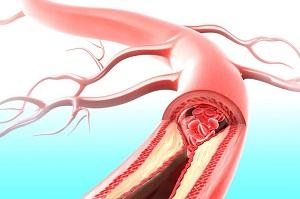 Для предупреждения развития атеросклероза нужно предпринимать определенные профилактические меры. Среди них основными являются уменьшение поступления холестерина в организм, активное выведение холестерина и продукты его обмена из организма.