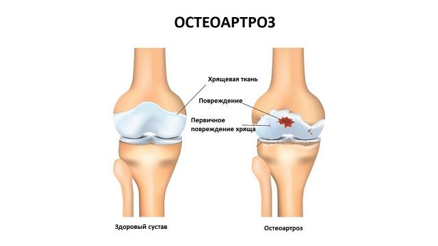 Остеоартороз является самым распространенным заболеванием среди людей старшей возрастной категории.