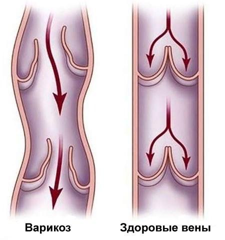 Варикозное расширение вен традиционно ассоциируется с нижними конечностями, но это заболевание может возникать и на других участках тела человека и иметь более серьезные последствия.